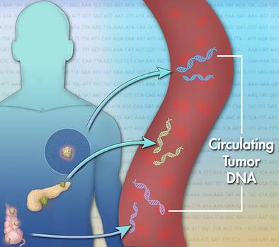 circulatory tumor